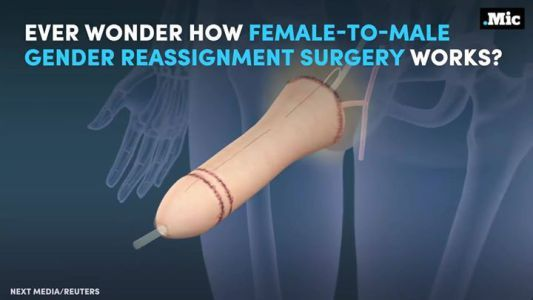 Heres how female-to-male gender reassignment surgery works.   #MicBrights #news #alternativenews