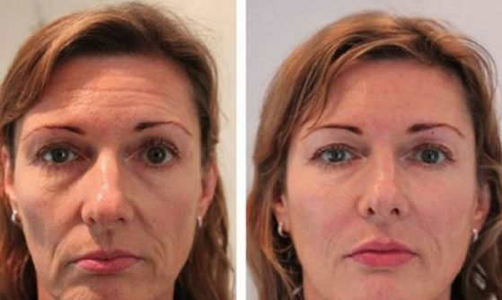 Diminish Face Wrinkles And Lift Up Baggy Facial Muscle With Face Rejuvenation Exercises