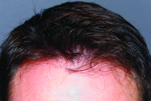 ARTAS Robotics Hair Transplant: After (9 months) photo of hairline. See the before here - http://www.pinterest.com/pin/86764730297054671/  Learn more here - http://www.hanswiemann.com/hair-transplant-services/artasrobotictransplants