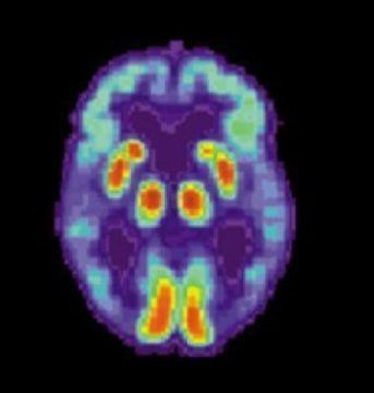 Reversal Of Alzheimer's Symptoms Within Minutes In Human Study