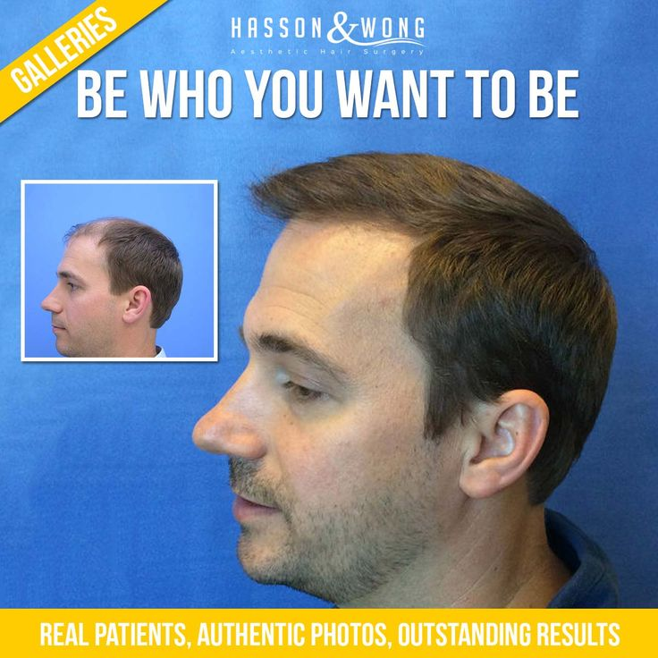 420 Best Outstanding Hair Transplant Results Images On Pinterest