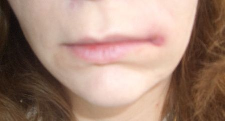 http://bbishare.com/what-is-a-cold-sore.html So what is a coldsore? Learn about at this site what exactly coldsores are and a lot more. Felt really Bad, Like the Flu - Not a Cold Sore = MRSA Infection Starting to Swell