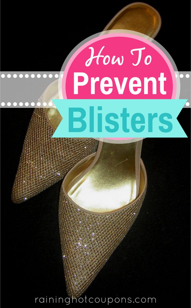 How to stop blisters from new shoes