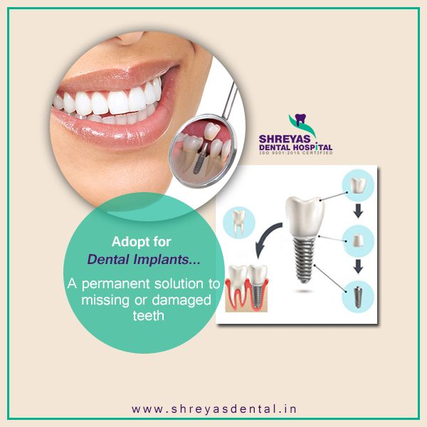 #Teethin3Days : Get the long lasting, tough and an everlasting solution for your #missing teeth... #DentalImplant #Teethin72Hours Visit at: http://www.shreyasdental.in or Call us @ 9712994608 to book an appointment with us.