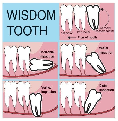 Dentaltown - A wisdom tooth or third molar is one of the three molars per quadrant of the human dentition. It is the most posterior of the three. Wisdom teeth generally erupt between the ages of 17 and 25. Most adults have four wisdom teeth, one in each of the four quadrants, but it is possible to have fewer or more, in which case the extras are called supernumerary teeth. Wisdom teeth commonly affect other teeth as they develop, becoming impacted. They are often extracted when this occurs.