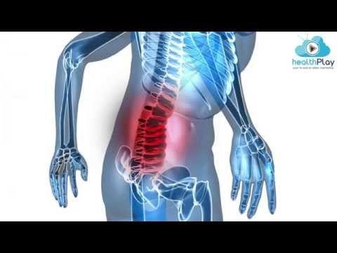 Bel ağrısı için pratik ve etkili çözüm önerileri - YouTube