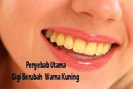 Penyebab Utama Gigi Berubah Warna Menjadi kuning read more