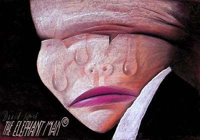 The Elephant Man (David Lynch, 1980).