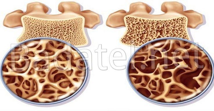 Toto ani lekári nevedia: Informácia o osteoporóze, čo zachráni vaše kosti