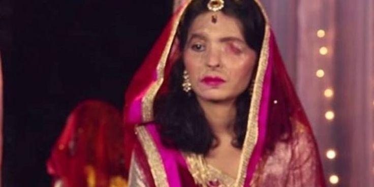 «Βασίλισσα» της πασαρέλας για μια μέρα 19χρονη Ινδή που έχει παραμορφωθεί από επίθεση με οξύ