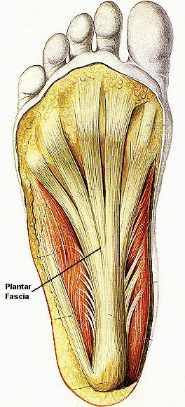 Plantar Fasciitis – Prevention, Treatment and Healing Techniques