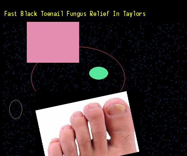 how to get rid of black under toenail