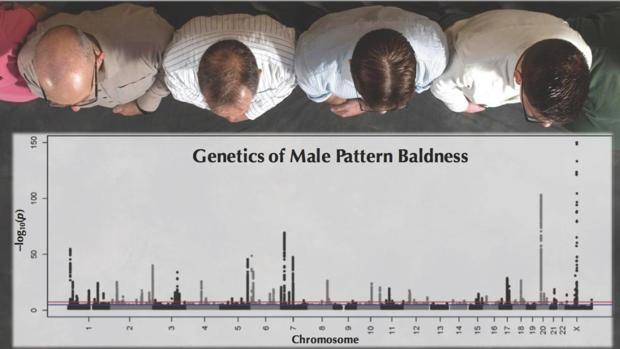 Los 300 genes que te dejarán calvo Hasta ahora, se había relacionado un puñado de genes con la probabilidad de sufrir alopecia. Pero un estudio publicado este martes en PLOS Genetics,... http://sientemendoza.com/2017/02/14/los-300-genes-que-te-dejaran-calvo/