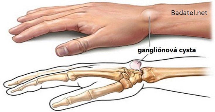 Vytvorili sa vám nezhubné gangliónové cysty a chcete sa ich zbaviť inak než operáciou? Potom skúste niektorý z týchto 5 domácich liekov.