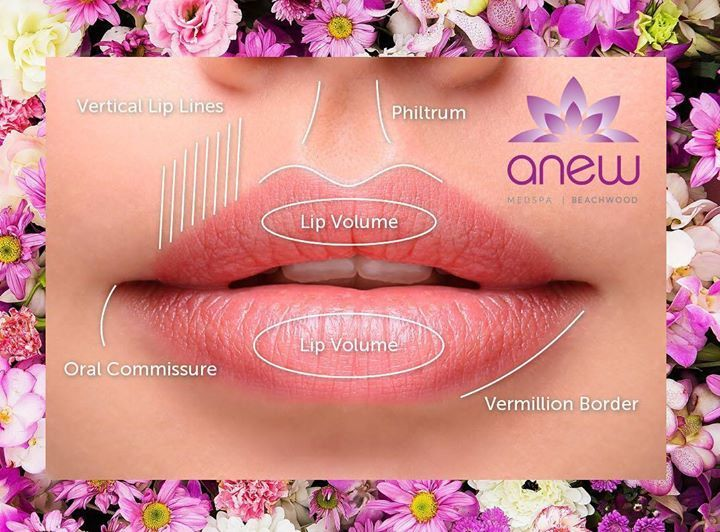 Come to Anew and we will make your lips gorgeous! We use Botox fillers and Anew Smooth Threads to make those lips pop! Get your Anew lips today! #ANEWmedspa #anewyou #anewyou2017 #ANEW #anewbeginning #anewbeachwood #botox #fillers #juvederm #restylane #silkpeel #dermalinfusion #skincare #medspa #hairremoval #underarmsweating #coolsculpting #fatreduction #bodycontouring #freezethefat #freezefat #lips #loveyourlips http://ift.tt/2mWAj6w