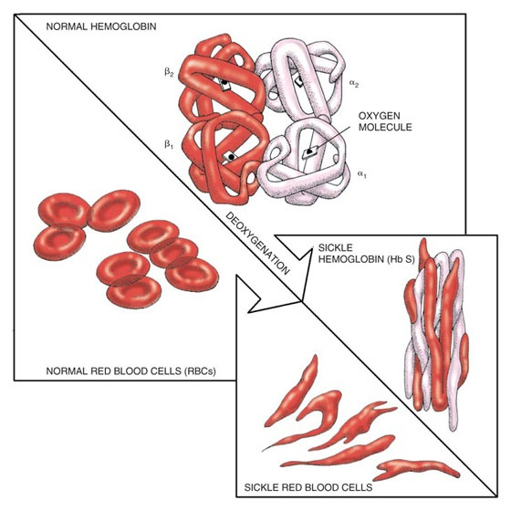 the clinical description of sickle cell anemia and its prevalence Sickle cell anemia clinical presentation updated: dec 27, 2017 author: joseph e maakaron, md splenic sequestration occurs with highest frequency during the first 5 years of life in.