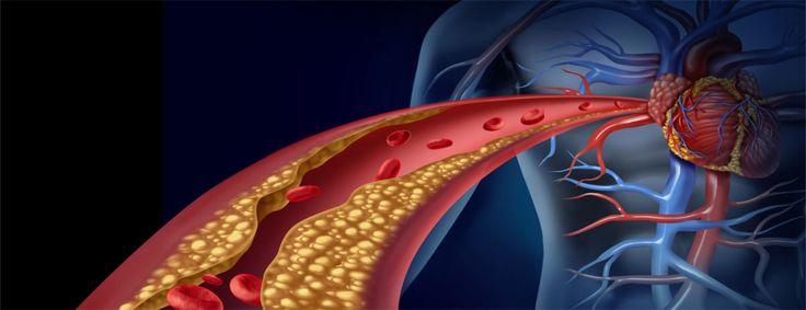 Los triglicéridos y el colesterol son dos sustancias que pertenecen al grupo de los lípidos que están presentes en nuestro organismo; pero, en realidad ...