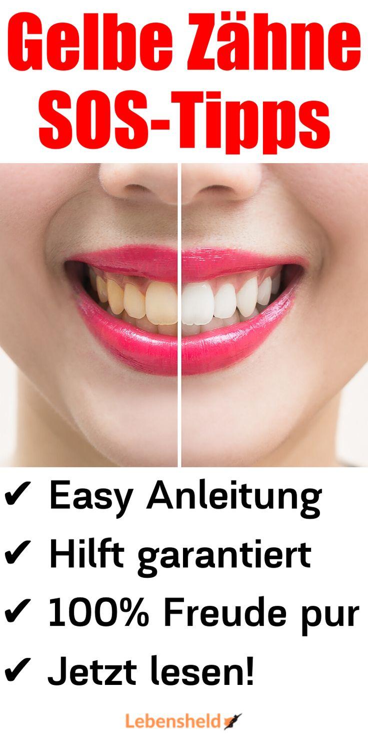 Gegen Gelbe Zähne