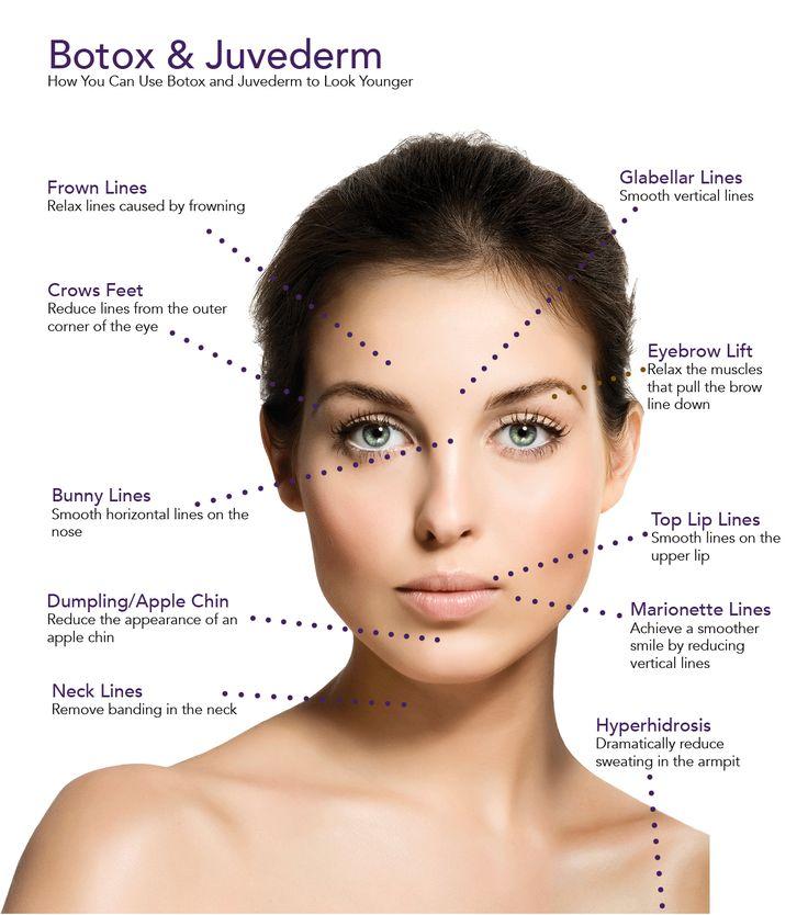 BotoxJuvedermDiagram of face   Body skin   Botox