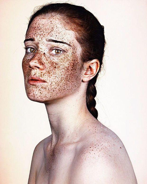 Freckle facial 14