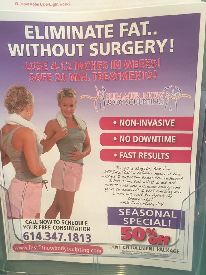 Alli weight loss stories