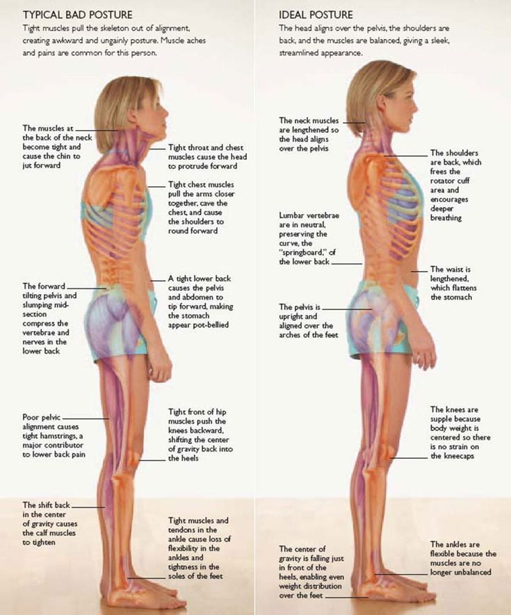 Strengthening of the core is the best way to improve your posture and correct (o…