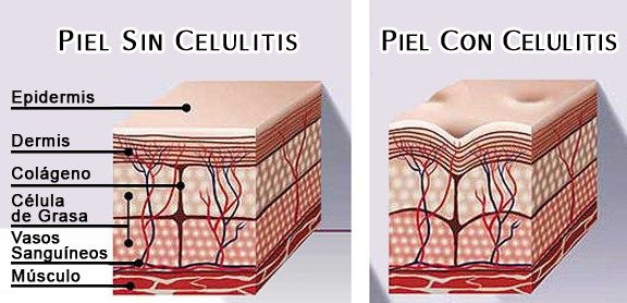 Resultado de imagen para celulitis factores que inciden