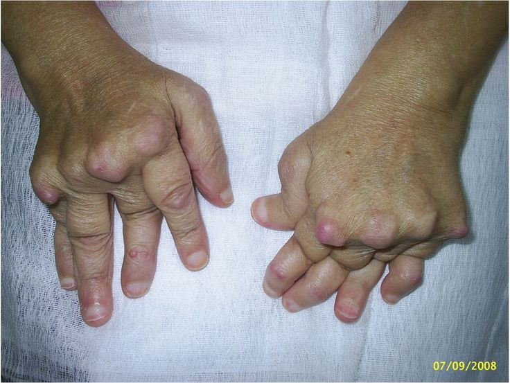 Natural Remedies For Arthritis In Hands And Neck