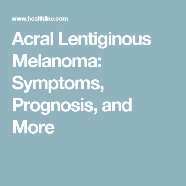 Acral Lentiginous Melanoma: Symptoms, Prognosis, and More
