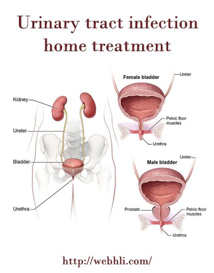 Urinary Tract Infection Home Treatment Healthy Living Pinterest
