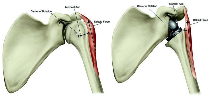 Maîtrise Orthopédique » Articles » Quoi de neuf en biomécanique des prothèses d'épaule inversées ?