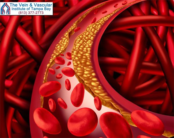 If plaque builds up in your arteries, your arteries narrow, interrupting blood flow.  This is a condition known as peripheral arterial disease (PAD).  If the arteries in your legs and feet get completely blocked, blood flow through your legs can stop.  If blocked arteries in the legs are not treated immediately you can run the risk of losing the affected leg.  #PADDoctorFlorida #PADTreatmentFlorida #TampaBayVascularCenter  https://www.tampavascularsurgeon.com/service/pad-treatment/