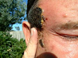 An account of healing cancer with black salve