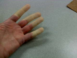 Raynaud's Disease | Information and support for those with Raynaud's Disease
