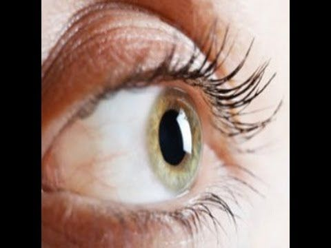 http://curing-eye-floaters.plus101.com ---Can Floaters In The Eye Be Treated. Eye floaters are extremely common, especially among older adults. They can occur in everyone, and indeed some people are born with them. Eye floaters are generally caused by damage, or imperfections in the vitreous humor, the jelly-like liquid found in the eyeball. They can also be caused by the solidification of proteins in this solution, or by the leakage of blood cells into the vitreous