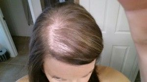How to Solve Hair Loss after Pregnancy
