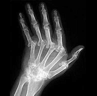 Joint Pain Symptoms