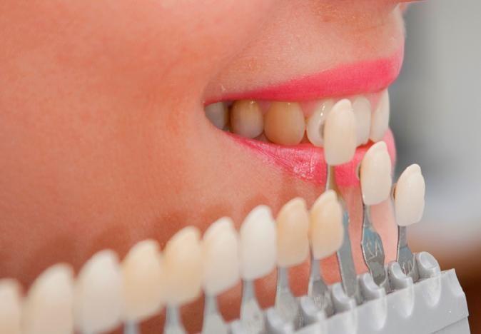 Виниры на зубы в стоматологической клинике Сочи цена и великолепный результат Вас порадуют   http://kedrclinic.ru/viniry-na-zuby-v-stomatologicheskoj-klinike-sochi-cena.html Наши профессиональные врачи стоматологи устанавливают виниры на зубы в стоматологической клинике Сочи цена, на эту услугу доступней с каждым днем. Подарите себе идеальную белоснежную улыбку и уверенность в себе с керамическими высококачественными винирами.