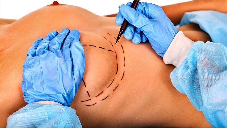 Reduction and prevention of scars after plastic surgery - http://houstonbestbreasts.com/2017/12/09/reduction-prevention-scars-plastic-surgery/