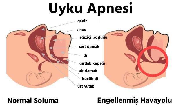 www.cevabim.com uyku apnesi