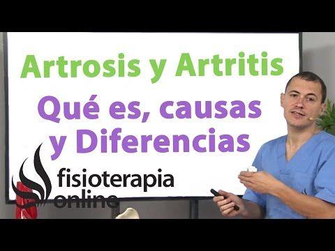 ¿Qué es la artritis reumatoide y qué diferencia la artritis de la artrosis? | Fisioterapia Online