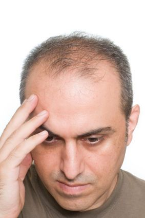 Frisuren Männer Wenig Haare Frisuren Männer Hair Loss Hair Und