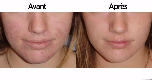 Découvrez ce qui arrive lorsque vous vous nettoyez le visage avec du vinaigre de cidre, et les bienfaits du vinaigre de cidre pour la peau.