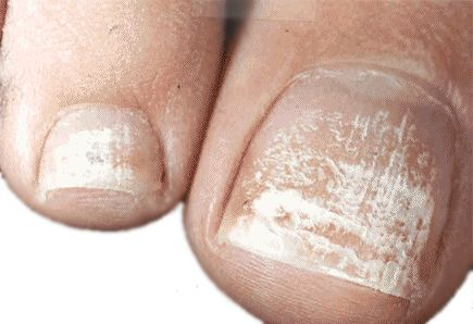 White toenail fungus got its name because of the white, powdery specs found on the