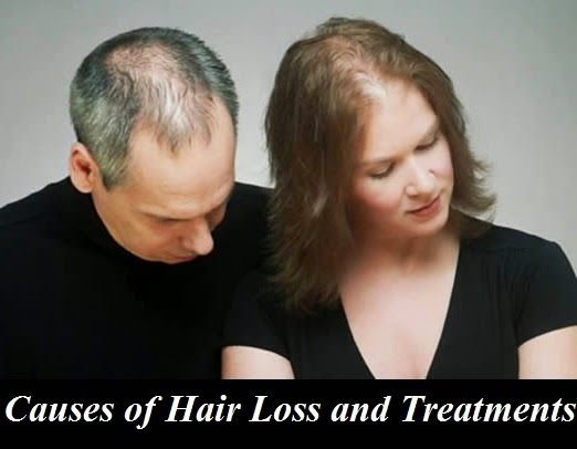 Causes of Hair Loss and Treatments
