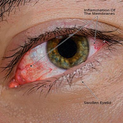 48 Best Images About Pink Eye On Pinterest Eyes Eye