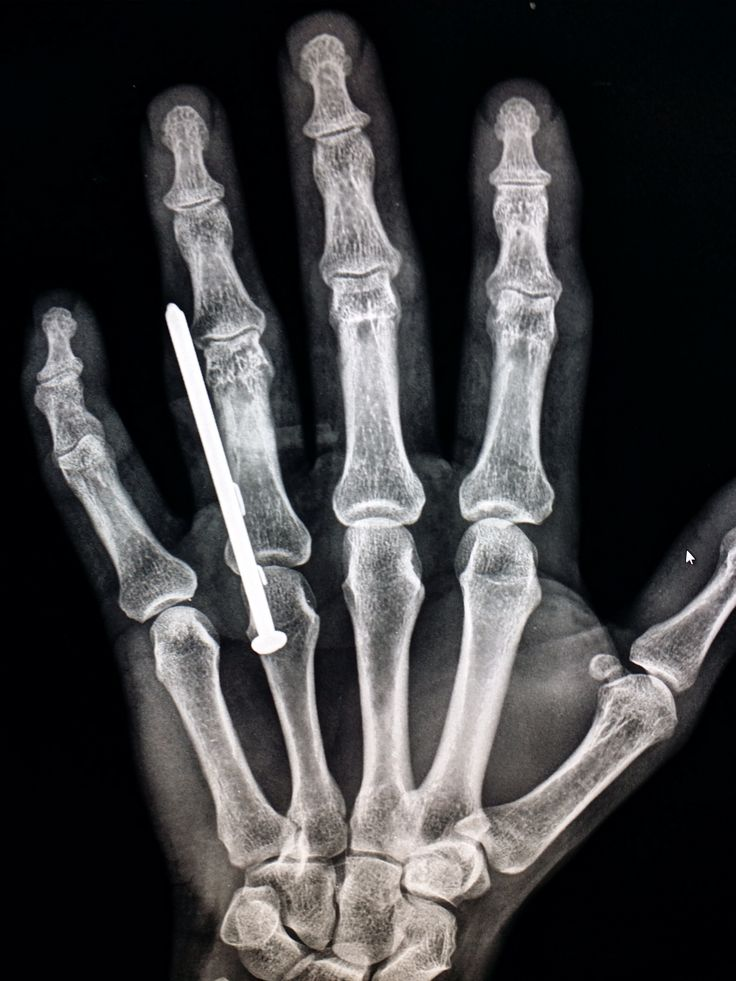 77 best Unusual X-rays images on Pinterest | Trauma, Radiology and X ...