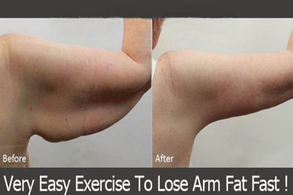 Flabby arms are caused by gradual deposition in the arm region and it is really difficult to get rid of fat in this area....