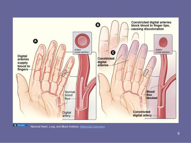 gemc: collagen vascular disease: considerations for emergent manageme…, Skeleton