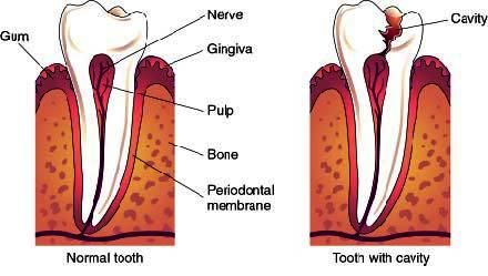 Causes of Reversible Pulpitis